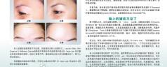 Combat and prevent wrinkles (Mandarin)