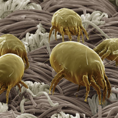 House dust mites and your skin
