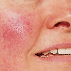Rosacea – The red fiery minus the lumps type