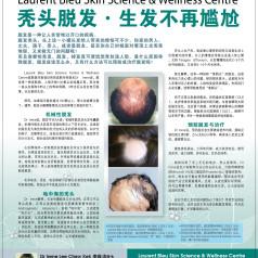 Hair loss (Mandarin)