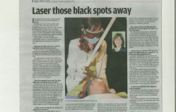 The Star – Laser those black spots away (Sep 2013)