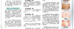 Combat acne scars (Mandarin)