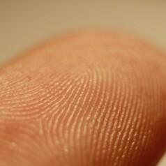Dermatitis can lead to fingerprint ID failures