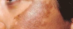 Melasma